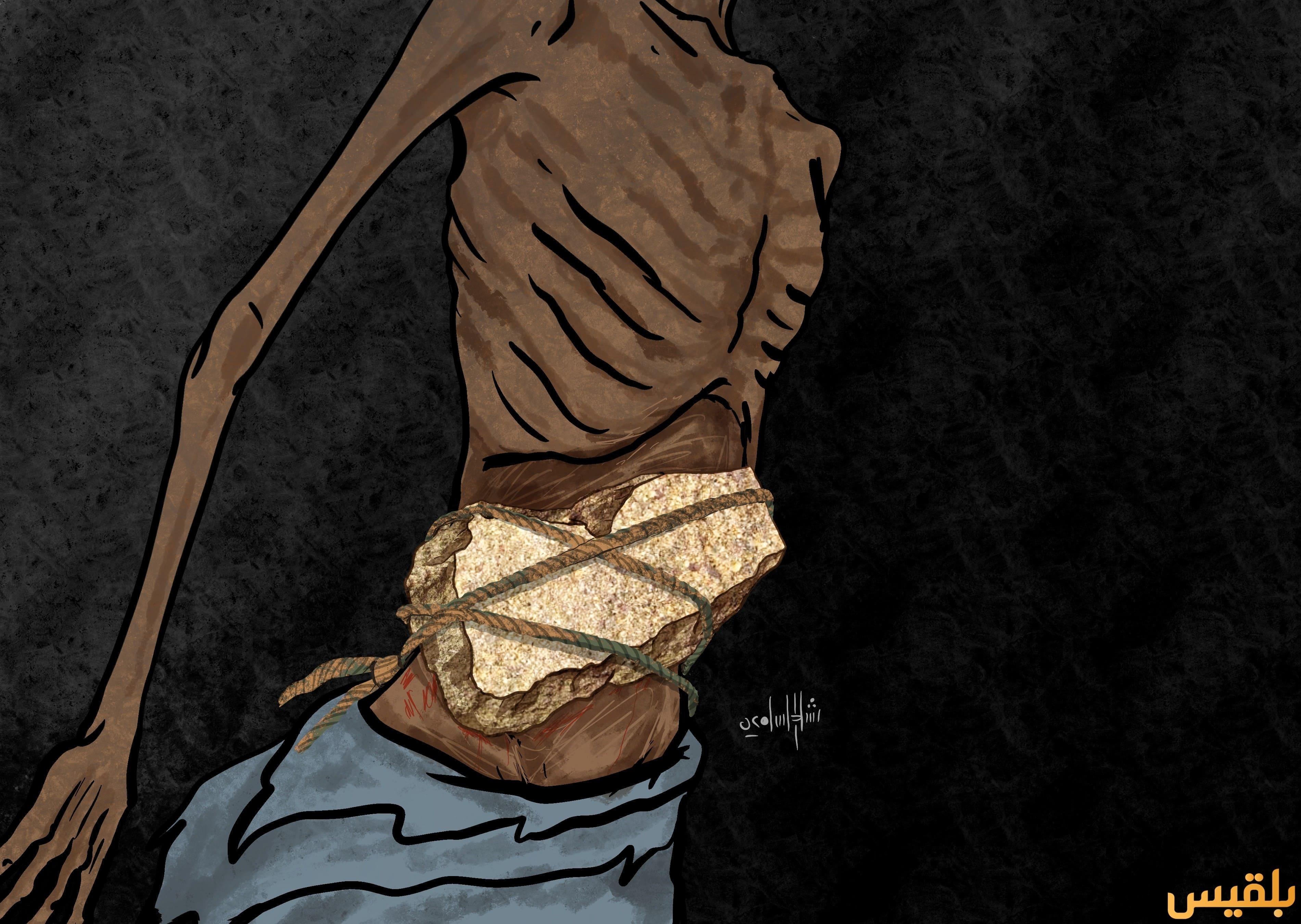 الجوع-في-اليمن